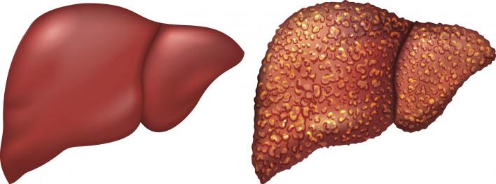 Symptoms of Liver Cirrhosis